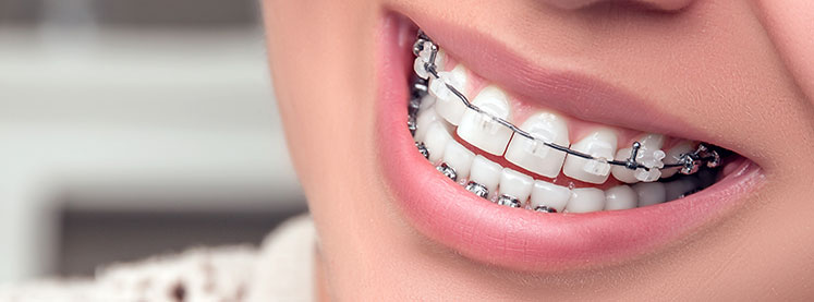 Teeth Whitening While Wearing Braces Is It Possible
