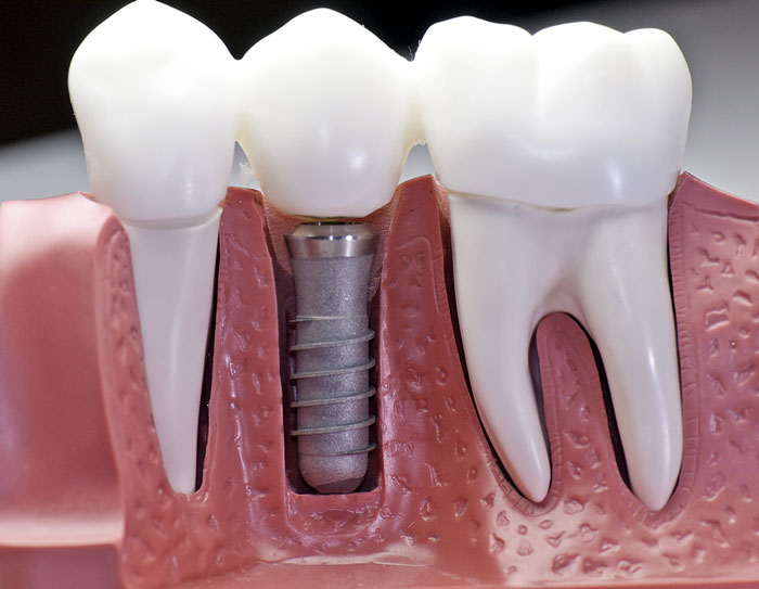 Dental Implants texas