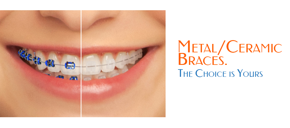 Is It True Ceramic Braces Are Better Than Metal Braces